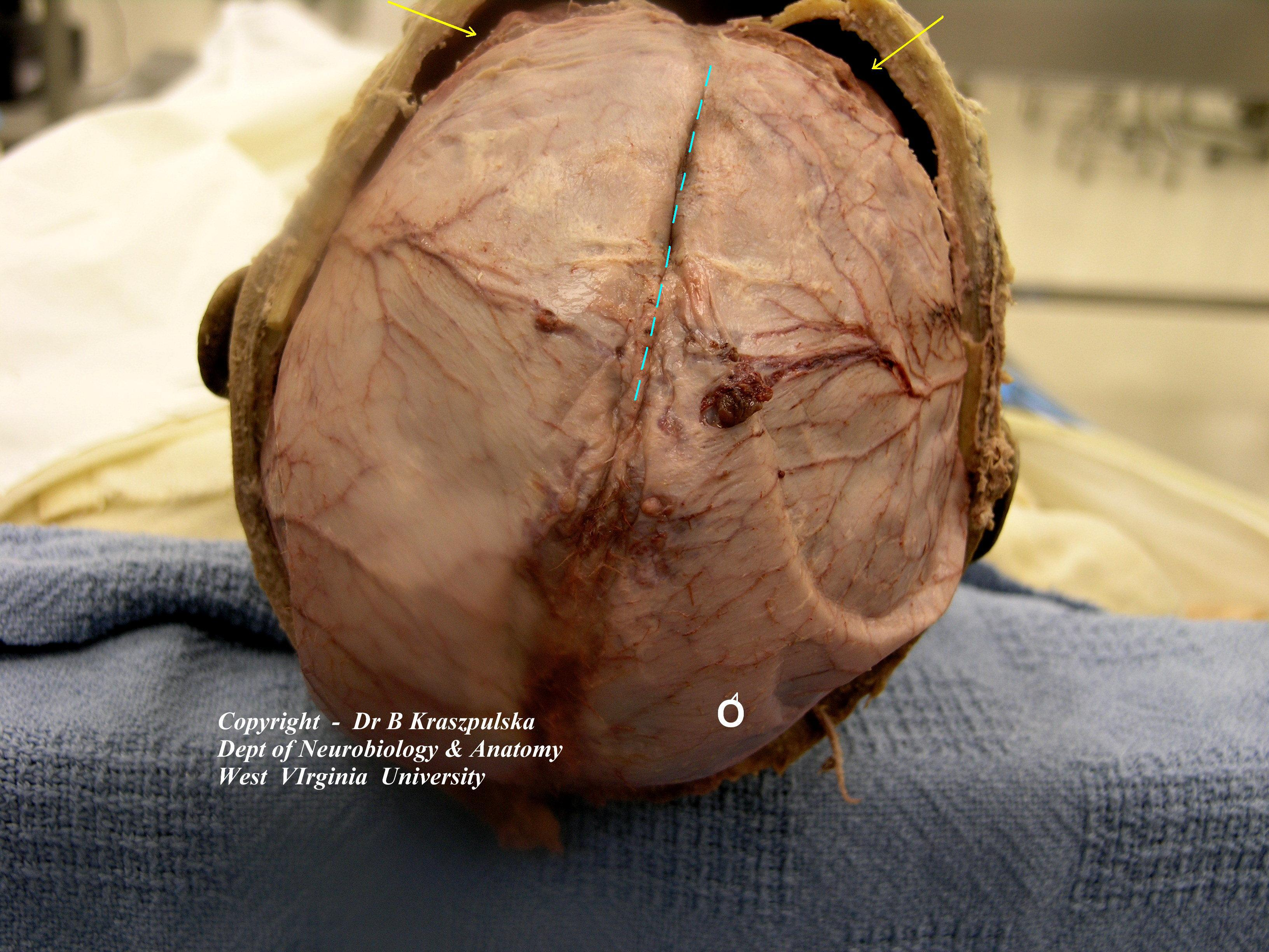 Brains Skull Skull Open Brain in Situ